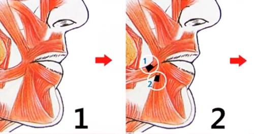 """Quy trình cắt miệng xinh như """"hot girl""""  - Ảnh 5"""