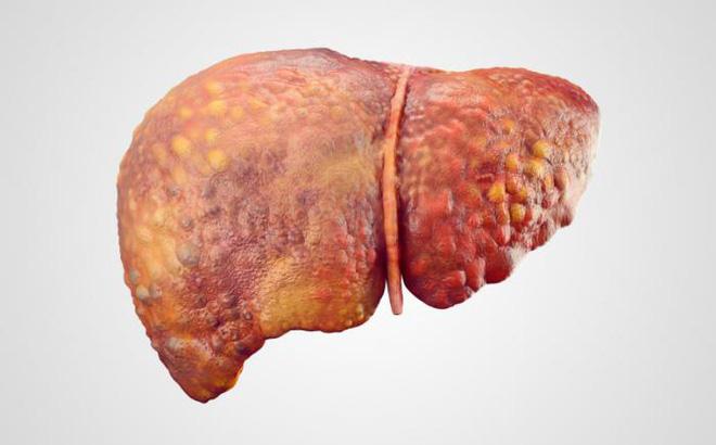 Chuyên gia hàng đầu BV Bạch Mai chỉ 4 nguyên nhân, 7 dấu hiệu ung thư gan không nên bỏ qua