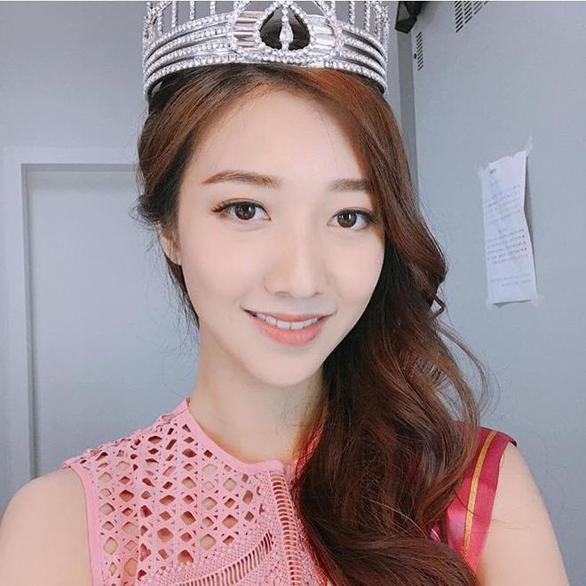 Dư luận Hồng Kông bức xúc vì Hoa hậu 2017 răng hô xấu xí, Á hậu lại có nhan sắc tuyệt trần - Ảnh 3.