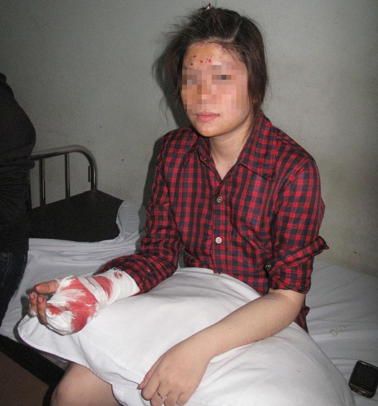 Vụ bom thư ở Hải Phòng: Sức khỏe nữ kế toán kém đi