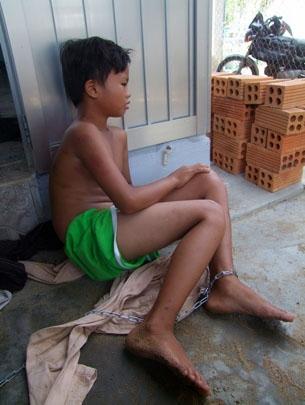 Những vụ bạo hành trẻ em kinh dị nhất Việt Nam - Ảnh 8