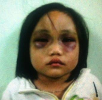 Những vụ bạo hành trẻ em kinh dị nhất Việt Nam - Ảnh 5