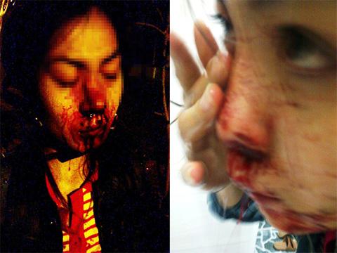 Chạy trốn CSGT, vợ ngồi sau xe vỡ mũi Trưởng phòng CSGT lên tiếng