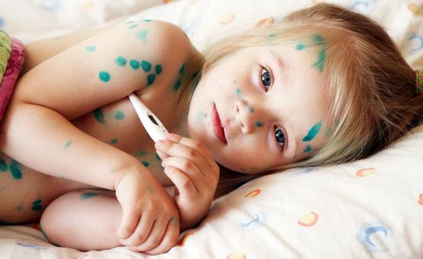 Kết quả hình ảnh cho cách chữa bệnh thủy đậu cho trẻ