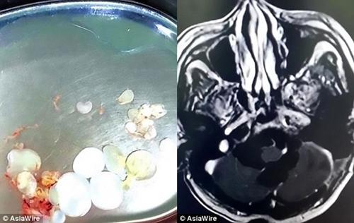 Ham mê món gỏi sống, người đàn ông bị sán làm tổ, đẻ trứng trong não - ảnh 1
