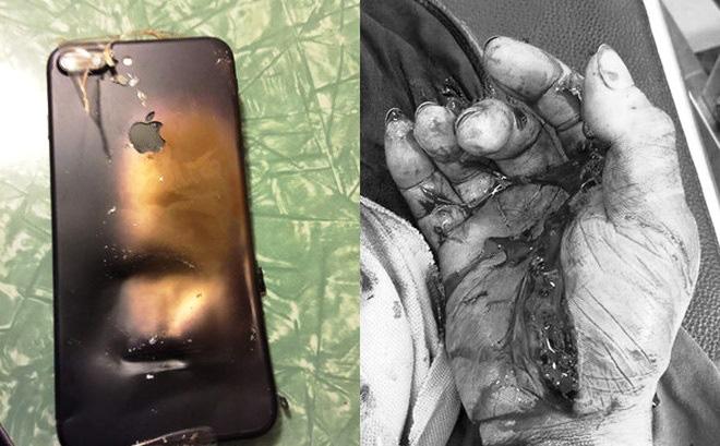 Nam thanh niên bỏng toàn thân vì vừa sạc pin, vừa dùng điện thoại - ảnh 1