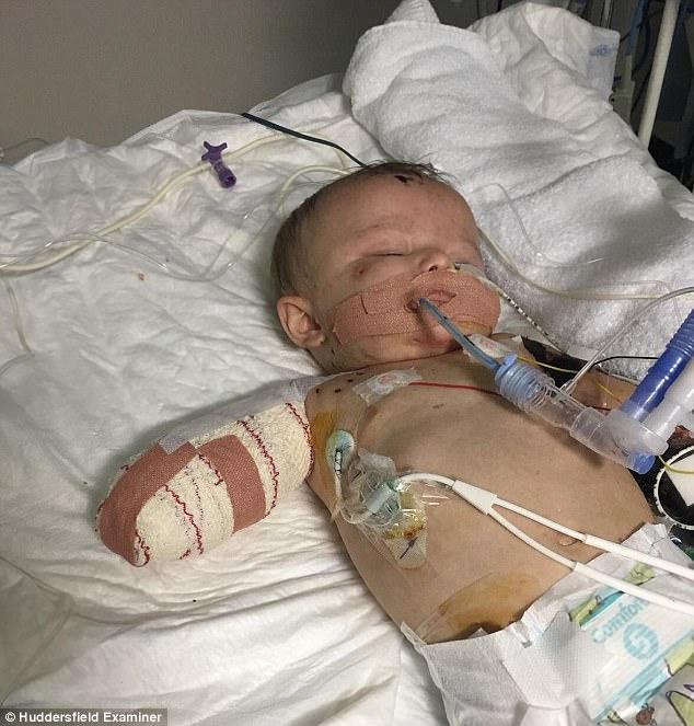 Bé 1 tuổi phải cắt bỏ tay chân, mù, điếc vì không được tiêm vắc xin phòng bệnh - ảnh 1
