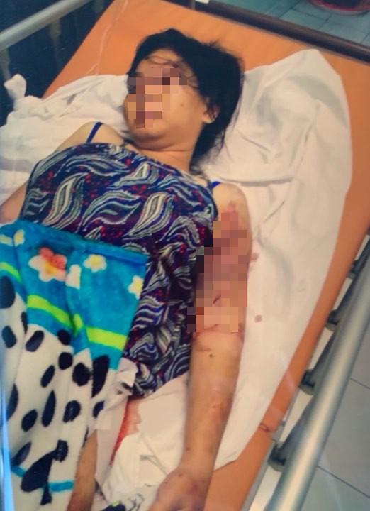 Vụ bà bầu 18 tuổi bị giam, tra tấn đến sẩy thai: Chi tiết lạ trong lời khai của hai anh em chủ mưu - Ảnh 2