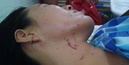 Vụ chồng đánh đập vợ từ dưới nước lên tận bờ ở Tây Ninh: Lời kể cay đắng của người vợ - ảnh 1