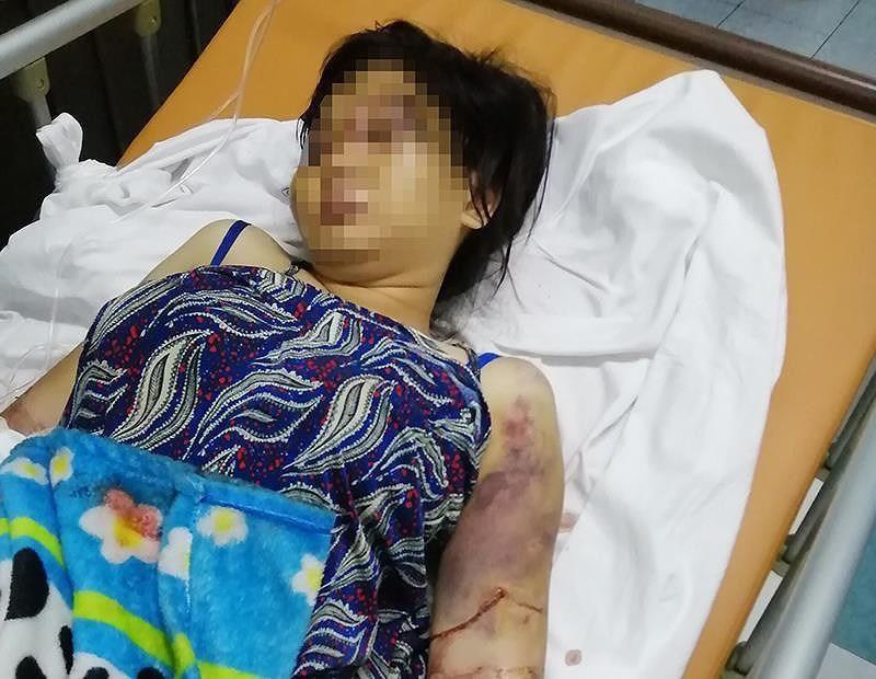 Diễn biến mới nhất vụ cô gái 18 tuổi bị tra tấn như thời trung cổ đến sảy thai - ảnh 1