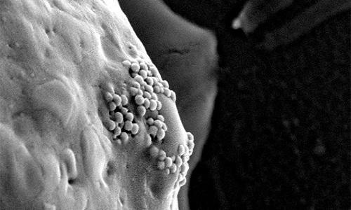 Thực hư thông tin tế bào gốc, nano vàng chữa được ung thư - ảnh 1