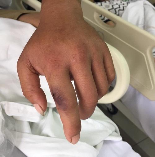 Rắn độc cắn người đi du lịch: Đau lòng người bệnh đến viện muộn do tin vào thuốc nam - ảnh 1