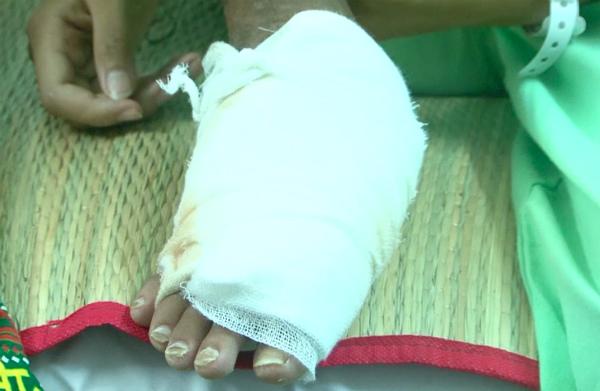 Bé gái 13 tuổi bị rắn cắn hoại tử xương bàn chân - ảnh 1