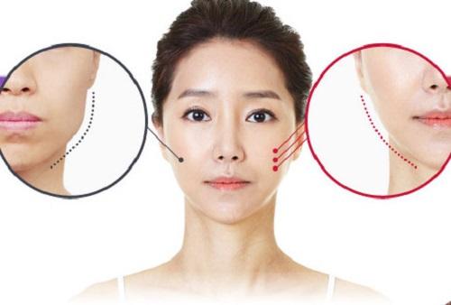 Gọt mặt Vline, công nghệ mang đến gương mặt thon gọn chuẩn sao Hàn  - ảnh 1