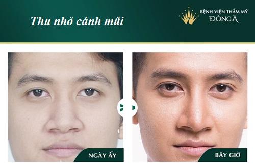 """Thu gọn cánh mũi chỉ mang lại hiệu quả """"khi và chỉ khi"""" - ảnh 1"""