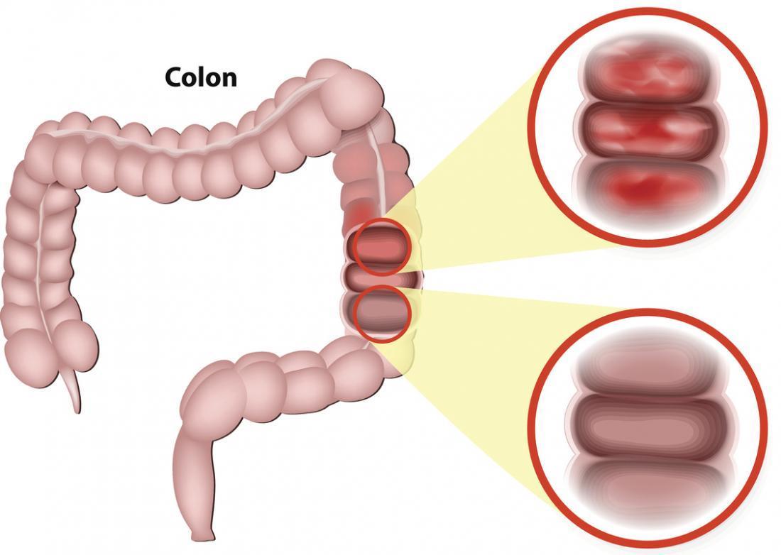 90% người bệnh viêm đại tràng mắc sai lầm này trong ăn uống - Ảnh 1