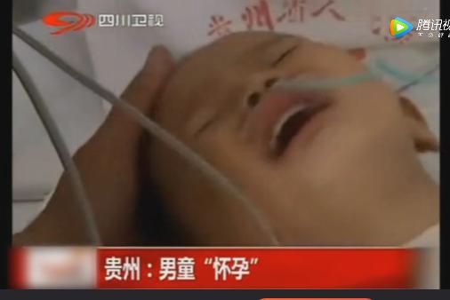 """Hi hữu: Bé trai 2 tuổi bỗng nhiên """"ốm nghén"""", mang thai em bé trong bụng - ảnh 1"""