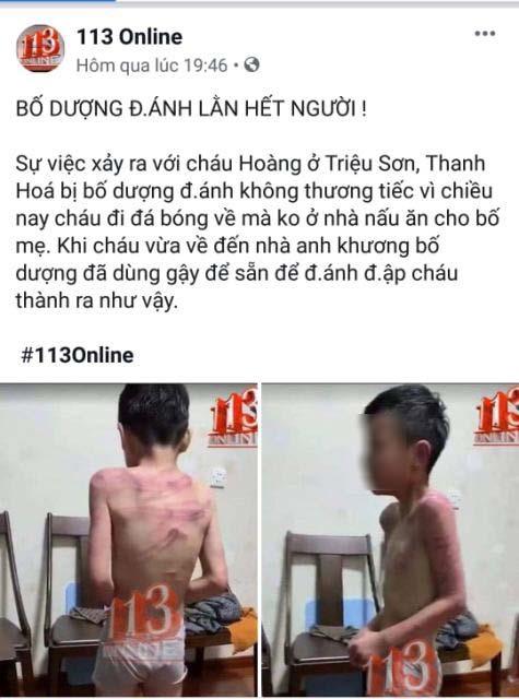 Vụ bé trai nghi bị bố dượng bạo hành dã man ở Thanh Hóa: Clip cắt ghép từ mạng Trung Quốc - Ảnh 2