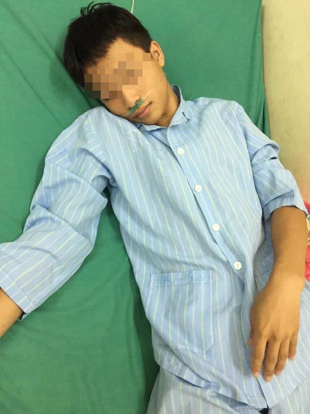 Hà Giang: Xót xa nam sinh mồ côi cả cha lẫn mẹ bị bạn bạo hành đến chấn động não - ảnh 1