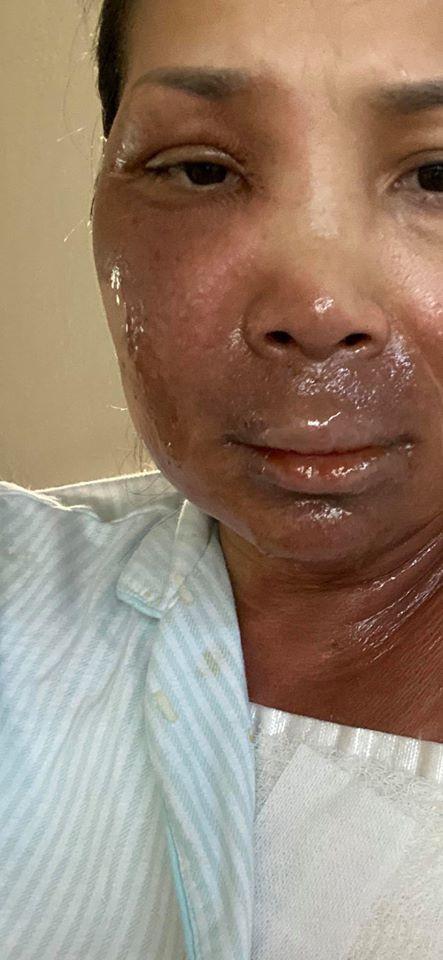 Khuôn mặt ca sĩ Hồng Ngọc giờ ra sao sau 1 tháng bị bỏng nồi xông hơi? - ảnh 1