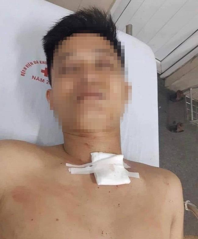 Ninh Bình: Nghi án nam thanh niên đâm chết người yêu giữa đường rồi tự sát bất thành - Ảnh 2