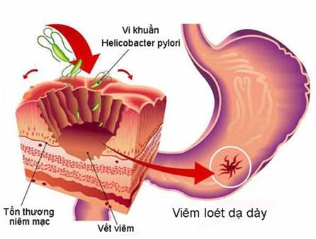 Giảm trào ngược dạ dày, đau dạ dày tái phát nhờ VITOS - Ảnh 3