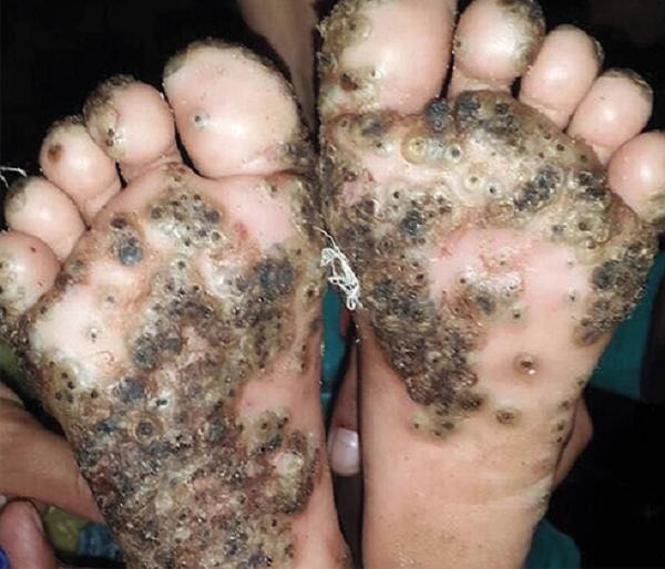 Rùng mình với bàn chân bé gái 10 tuổi bị bọ chét tấn công - ảnh 1