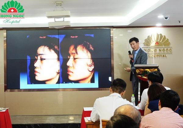 Bệnh viện Hồng Ngọc ứng dụng kỹ thuật mới trong phẫu thuật thẩm mỹ mũi của Hàn Quốc  - Ảnh 3