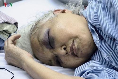 Hà Nội: Con rể đánh mẹ vợ nhập viện vì đòi thăm con lúc rạng sáng - Ảnh 1