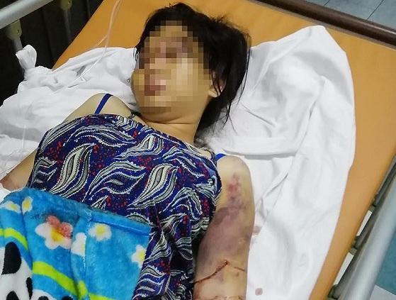TP.HCM: Truy tố nhóm người tra tấn cô gái 18 tuổi đến chết thai để đòi nợ - ảnh 1