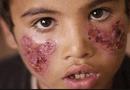 Sức khoẻ - Làm đẹp - Con muỗi bé xíu nhưng lại là sát thủ giết người nhiều nhất mỗi năm