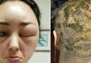 Đời sống - Cô giáo 47 tuổi qua đời sau 2 ngày đến tiệm làm tóc và lý do khiến chị em giật mình