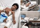 Y tế - Nguy cơ chết người từ những vết xước
