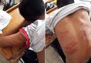 """Tin trong nước - Bé trai bị bố đánh đến nhập viện: """"Em không dám la hét, chỉ ôm tay vào mặt lăn dưới nền đất"""""""