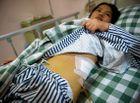 """Sức khoẻ - Chấn động: Bệnh viện bị """"tố"""" đánh cắp thận của bệnh nhân"""