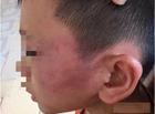 Tin tức - Diễn biến mới vụ mẹ kế nghi bạo hành con chồng phải nhập viện