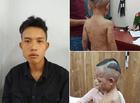 Tin tức - Thông tin mới nhất vụ cháu bé 3 tuổi bị cha dượng hành hung tại Phú Quốc
