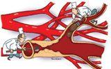 Tinh lá sen tươi firi giảm mỡ máu, gan nhiễm mỡ hiệu quả