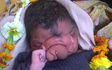 """Bé sơ sinh """"mũi voi"""" được tôn thờ ở Ấn Độ"""