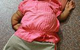 Bệnh lạ khiến thiếu nữ 19 có thân hình của trẻ lên 2
