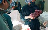 Cứu sống bé sơ sinh tim chỉ đập 30 nhịp/phút