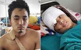 Động đất Nepal: Rơi từ độ cao 60m, cặp tình nhân sống sót kỳ diệu