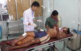 Đắk Nông: 4 thanh niên bị thương do cắt cỏ trúng đầu đạn
