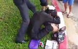 Sự thật về thanh niên nghi giả vờ chân hoại tử đi ăn xin bị đánh bầm giập