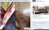 Sự thật chuyện bạn nữ bị 2 thanh niên cướp đồ, đánh đập giữa đêm
