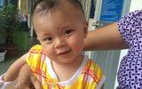 Bé bị đâm xuyên não tròn 9 tháng tuổi ngày tái khám
