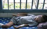 TP.HCM: Mắc bệnh rụng tay chân, thanh niên 18 như đứa trẻ 10 tuổi