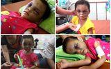 Nghi án - Điều tra - Bé 4 tuổi bị đánh dã man: Khởi tố mẹ đẻ và cha dượng tội gì?