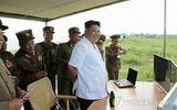 """Thế giới 24h - Ông Kim Jong-un bị """"vỡ mắt cá chân"""""""