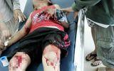Lựu đạn nhựa phát nổ, 2 cháu bé nhập viện cấp cứu